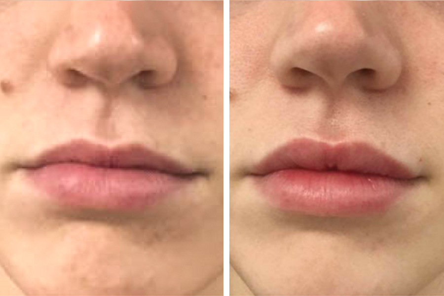 RowAntes&Despues-lipsbeauty-3